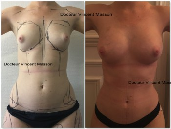 augmentation mammaire avant ou après la perte de poids