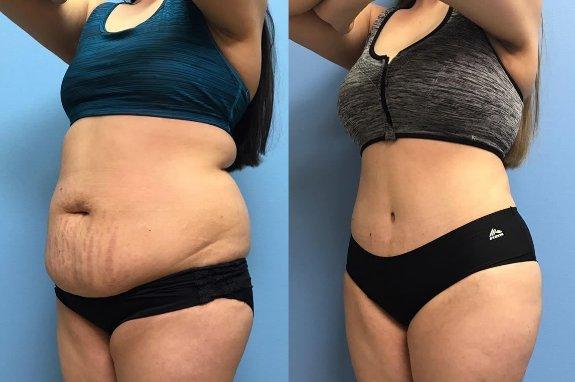 Abdominoplastie : pour retrouver un ventre plat | Santé Magazine