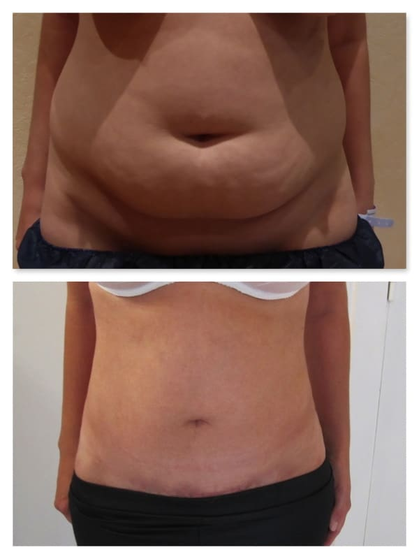 perdre 10 livres de graisse rapidement