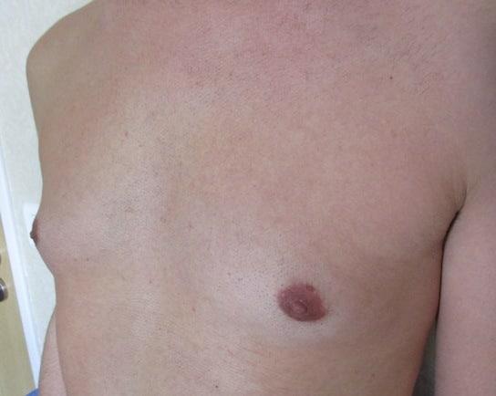 comment perdre rapidement les gros seins dun homme