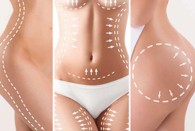comment éliminer les plis de graisse