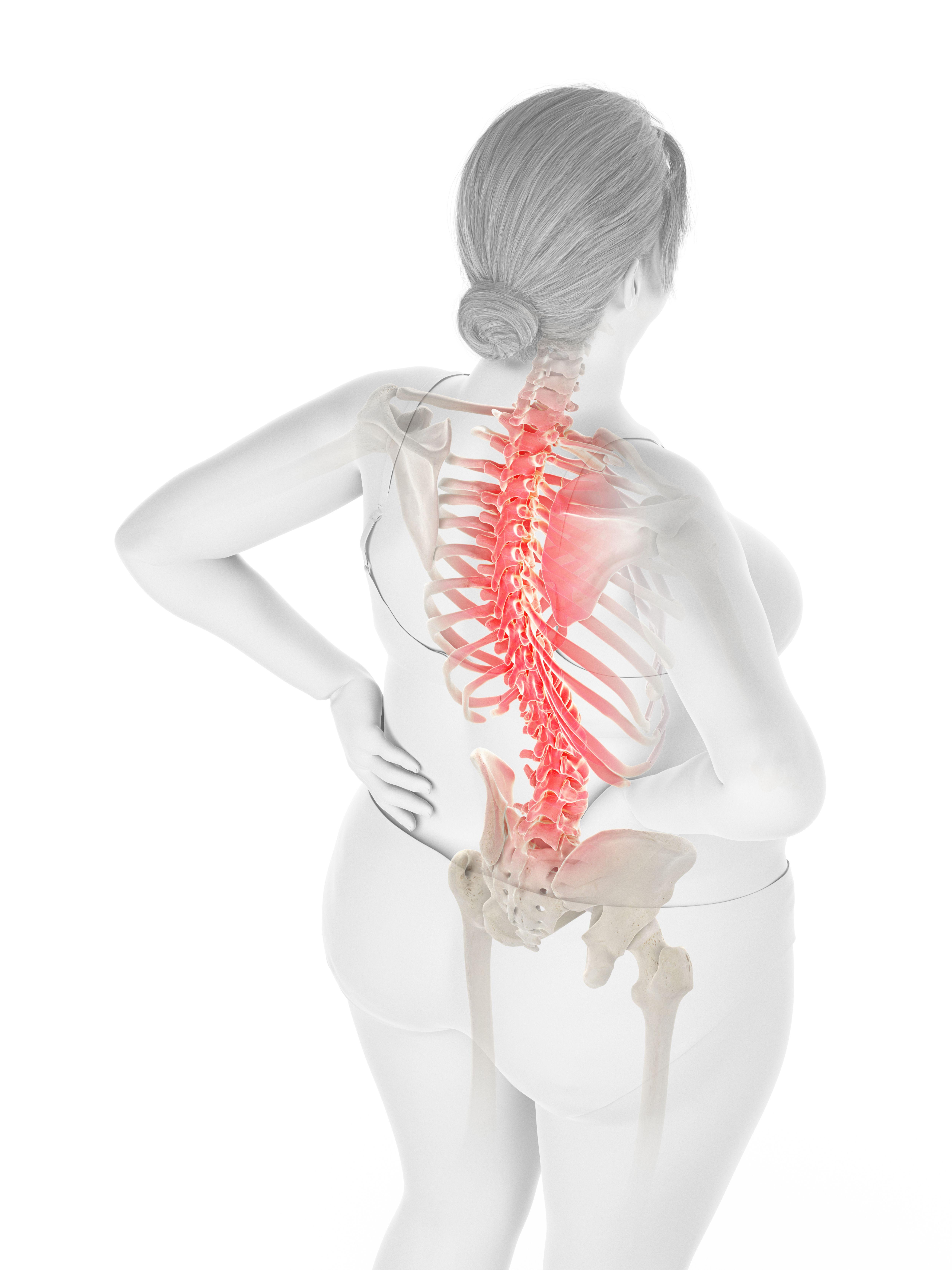 la perte de poids peut-elle causer des douleurs à la hanche
