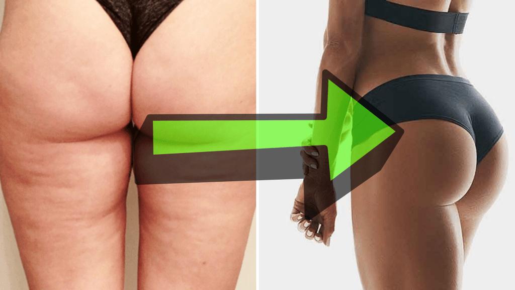 perdre de la graisse autour des fessiers
