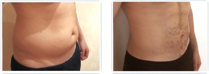 comment enlever la graisse du ventre masculin perte de poids jimmy carter blvd