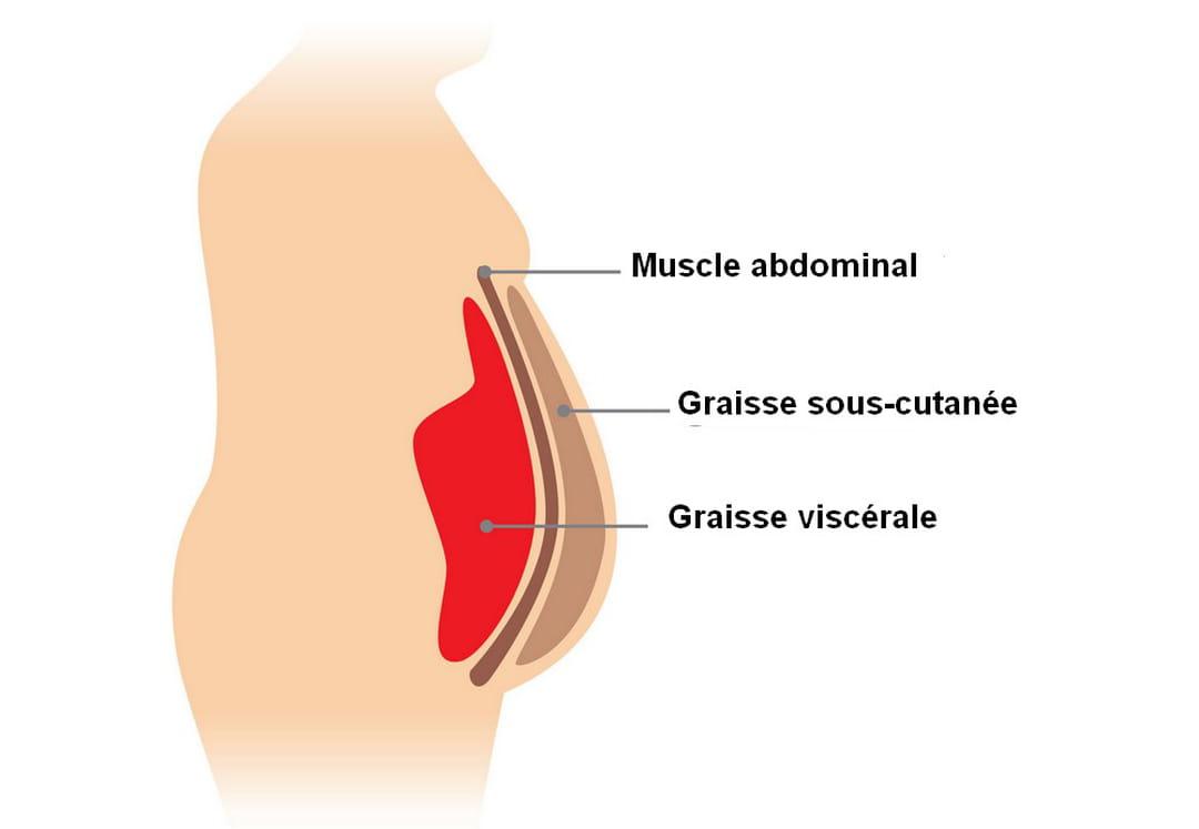 enlever la graisse des abdominaux