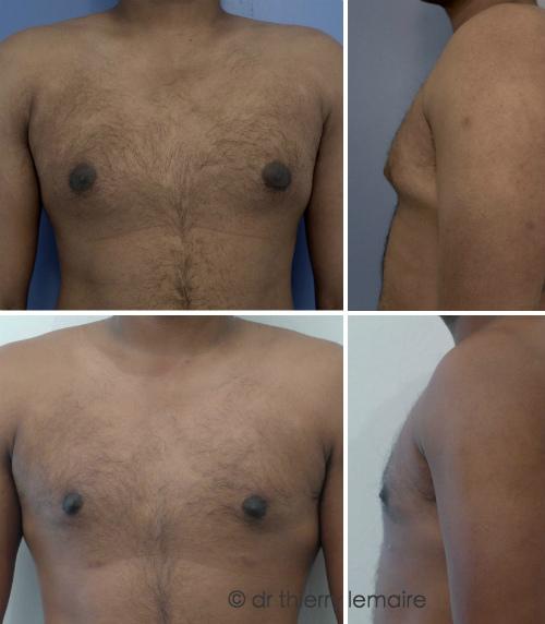 enlever lexcès de graisse de la poitrine