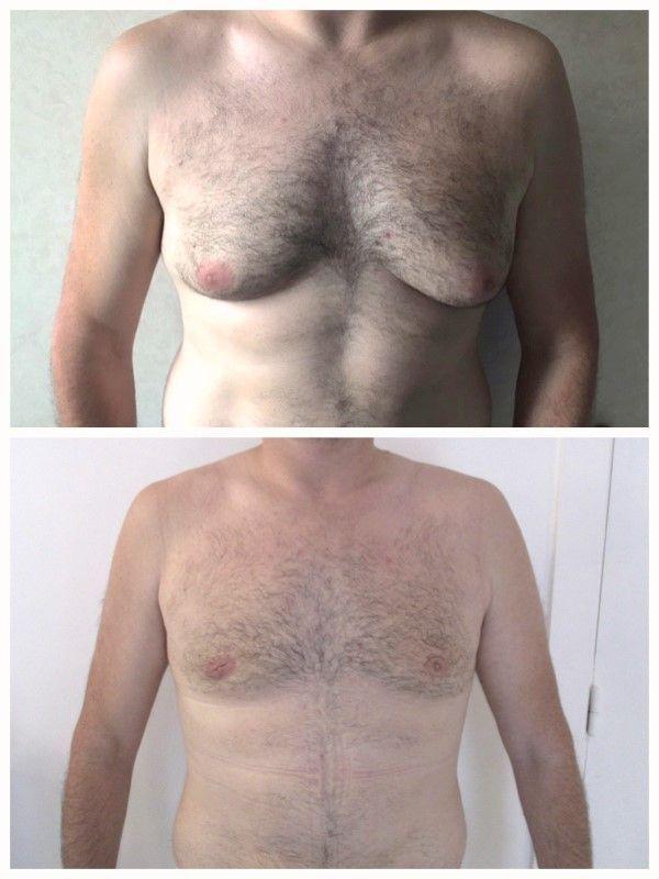 quelquun peut-il perdre du poids en 2 jours