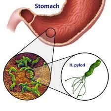 h symptômes pylori perte de poids jd Southern charme perte de poids