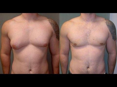 meilleure façon de brûler la graisse de la poitrine masculine
