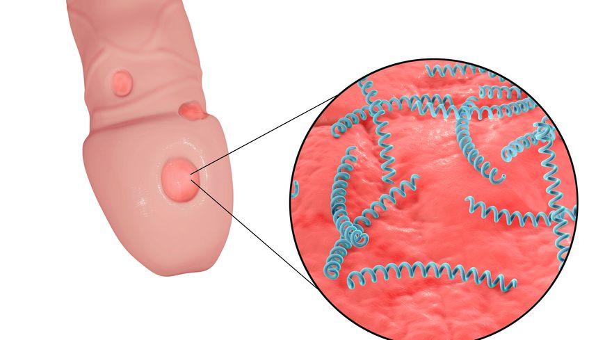 perte de poids de la syphilis le trampoline vous aidera-t-il à perdre du poids