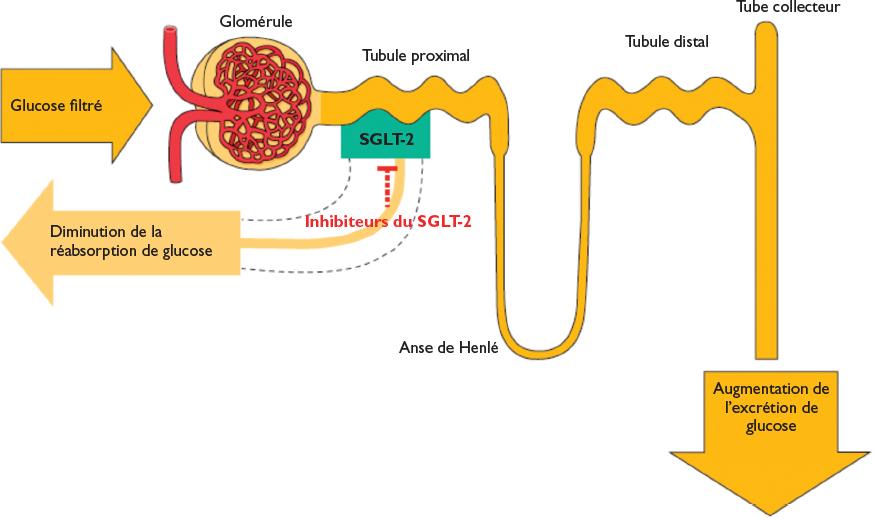 Les inhibiteurs du SGLT2: des médicaments prometteurs pour le diabète de type 1? – BETTER