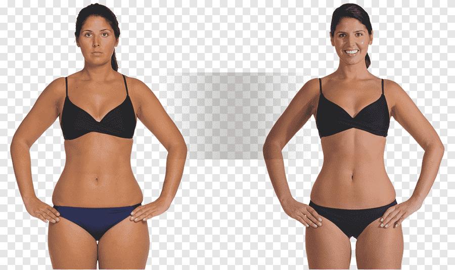 comment perdre du poids opération